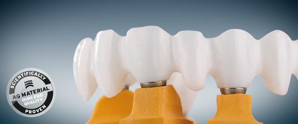 răng sứ Ceramill Zi-phục hình răng cao cấp